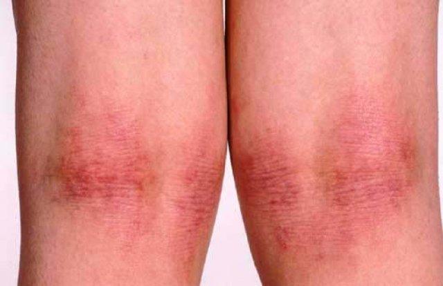 atopiki-dermatitida